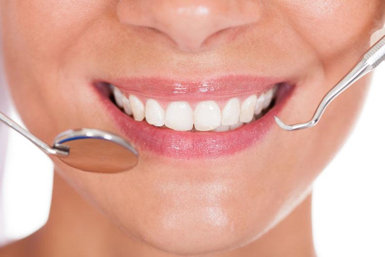 Perfect smile dentist treats microdontia and dracula teeth