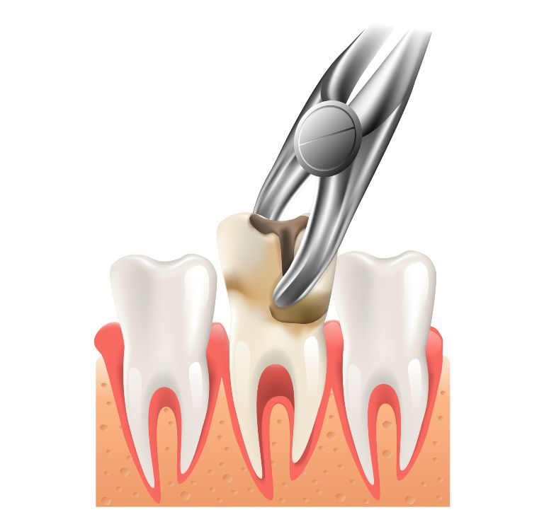 tooth nerve