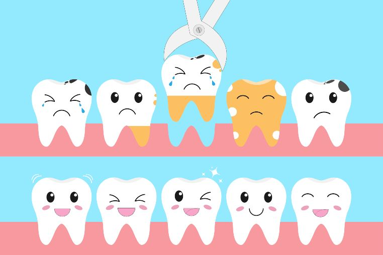 how to prevent tooth decay in toddlers