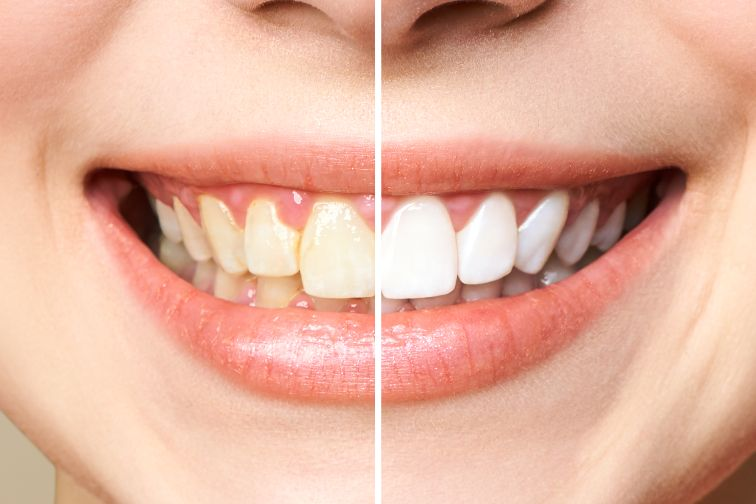 fluorosis images