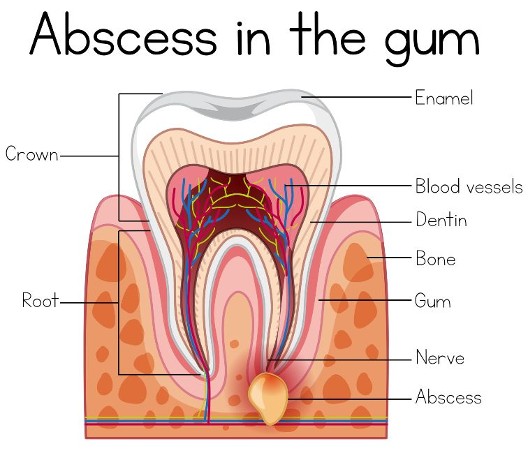 dental cyst vs abscess
