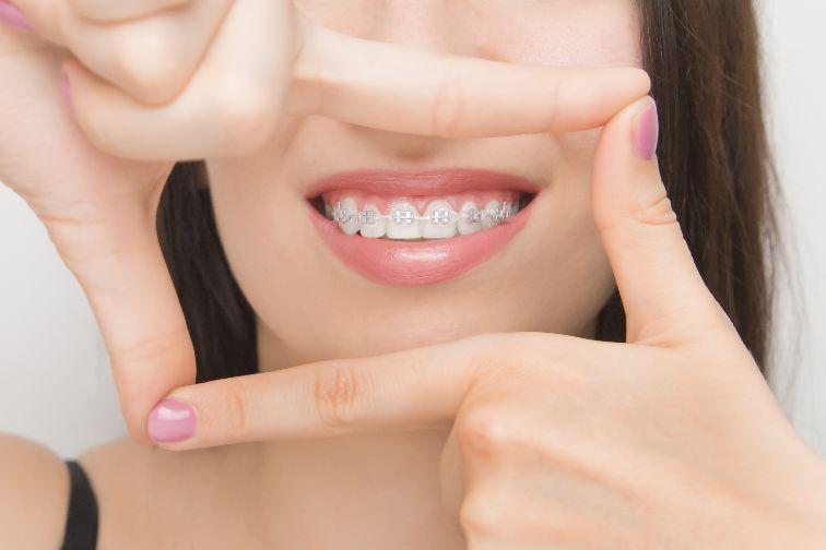 self ligating braces meaning