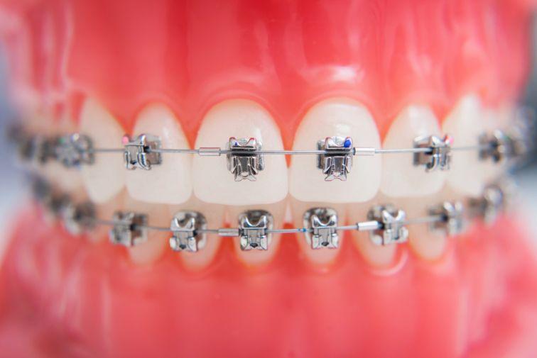 self ligating braces images
